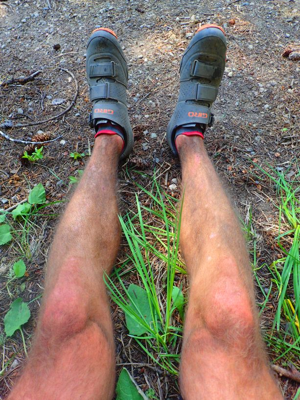 No shower for three days = DIRTY legs.